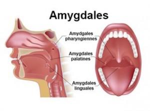 amygdales végétations